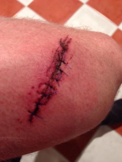 Schnittverletzung einer Kettensäge am Oberschenkel